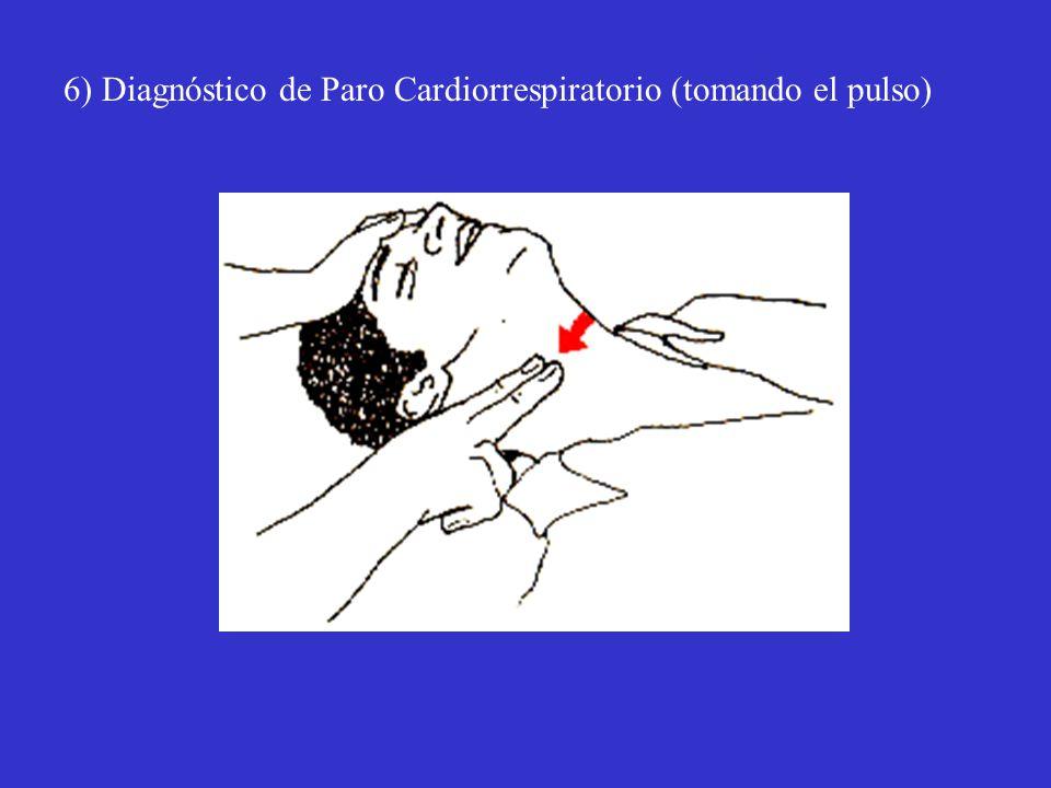 6) Diagnóstico de Paro Cardiorrespiratorio (tomando el pulso)