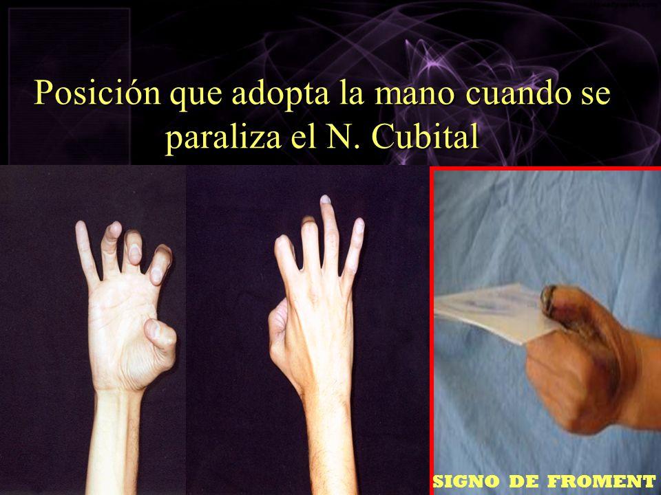 Posición que adopta la mano cuando se paraliza el N. Cubital