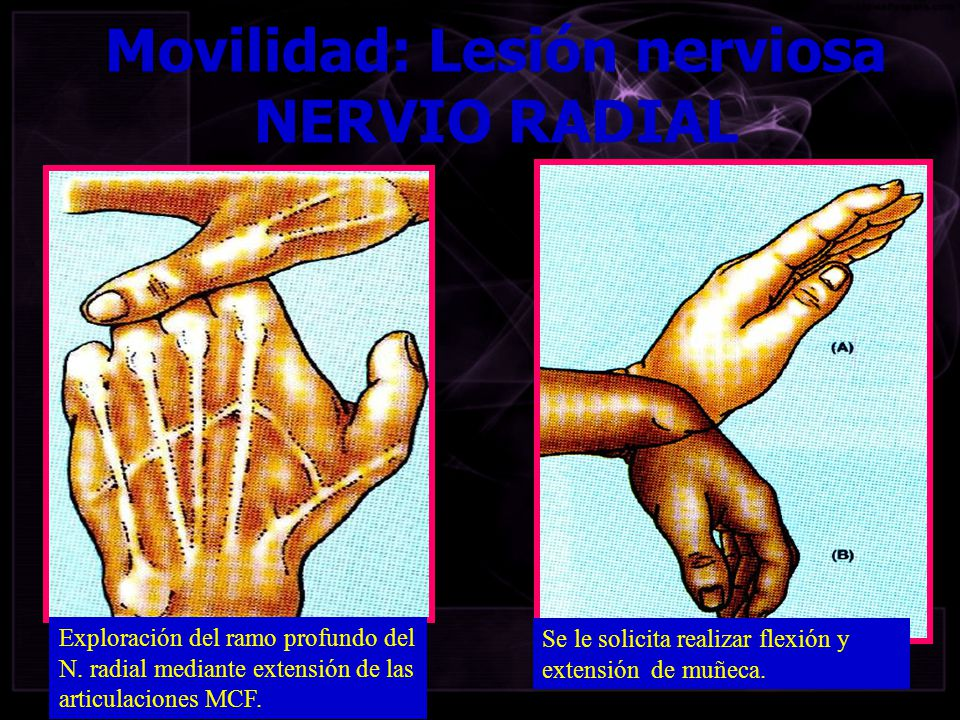 Movilidad: Lesión nerviosa NERVIO RADIAL