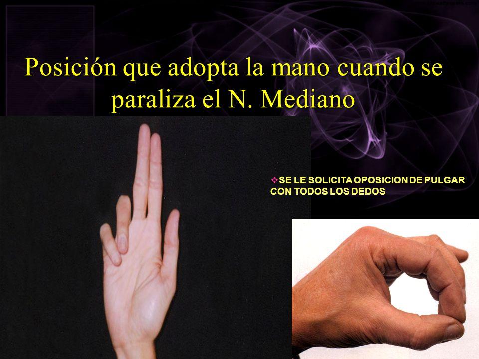 Posición que adopta la mano cuando se paraliza el N. Mediano