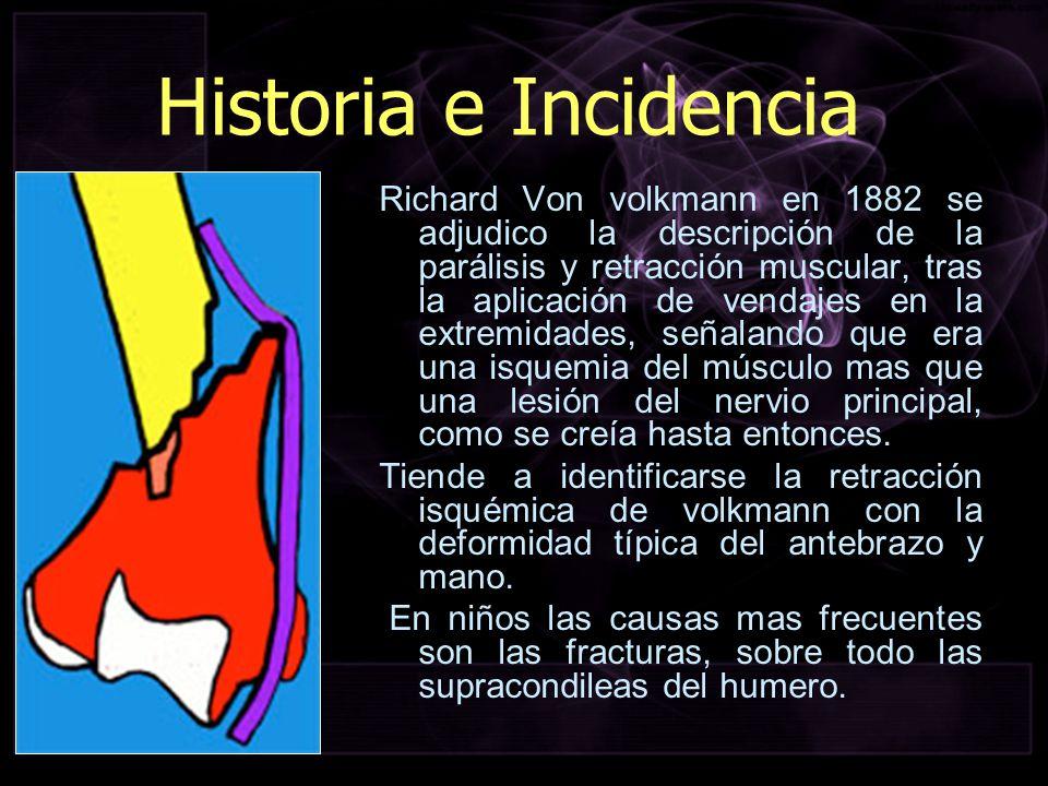 Historia e Incidencia