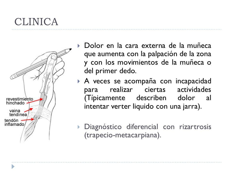 CLINICA Dolor en la cara externa de la muñeca que aumenta con la palpación de la zona y con los movimientos de la muñeca o del primer dedo.
