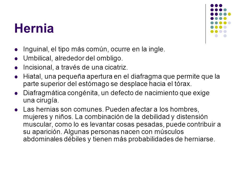 Hernia Inguinal, el tipo más común, ocurre en la ingle.