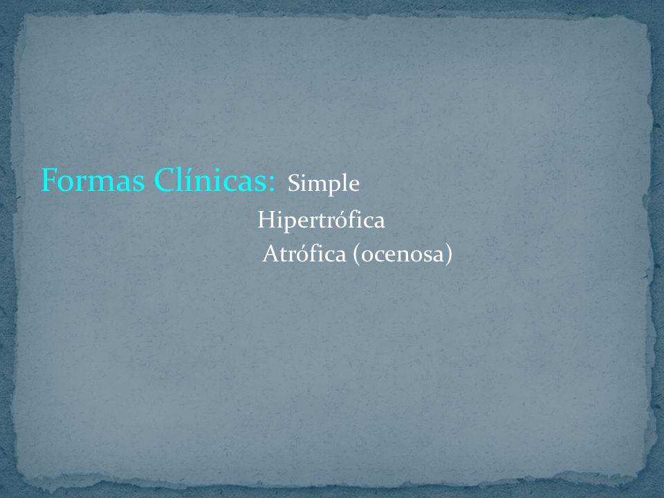 Formas Clínicas: Simple