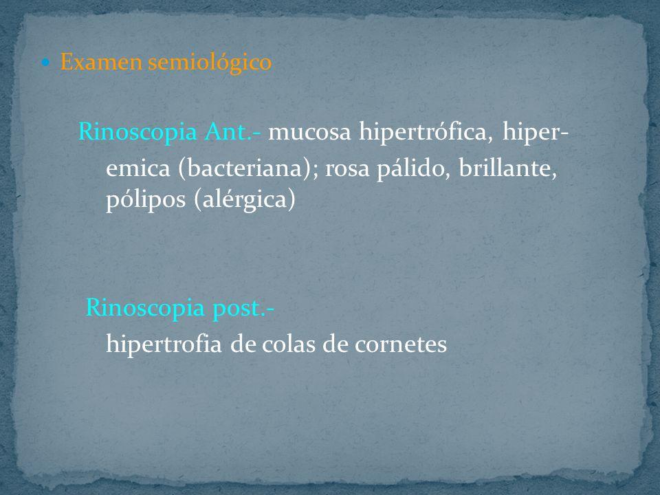 emica (bacteriana); rosa pálido, brillante, pólipos (alérgica)