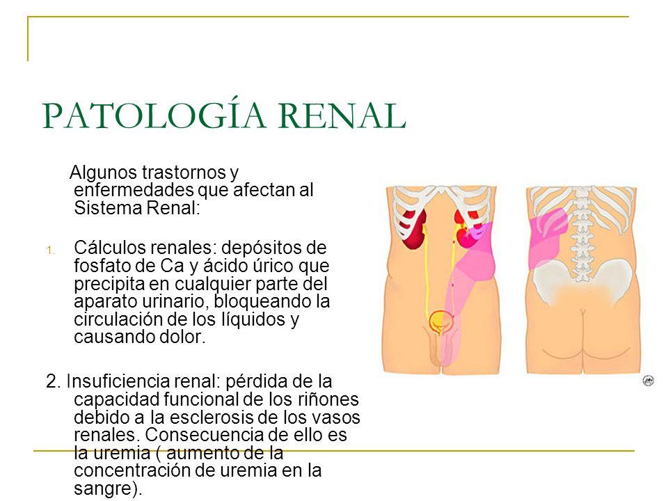 PATOLOGÍA RENAL Algunos trastornos y enfermedades que afectan al Sistema Renal: