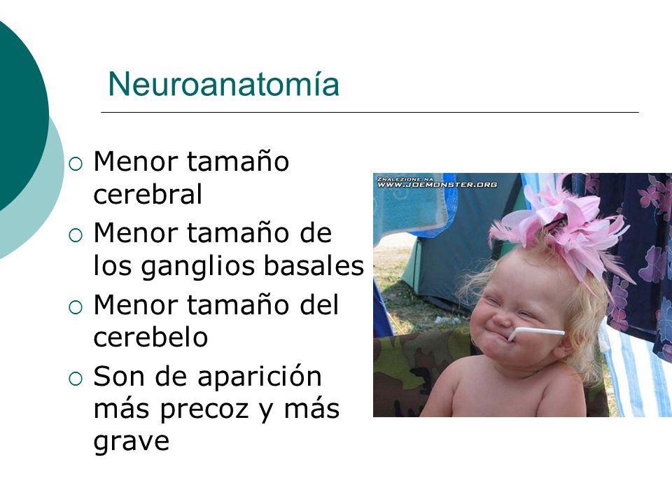 Neuroanatomía Menor tamaño cerebral
