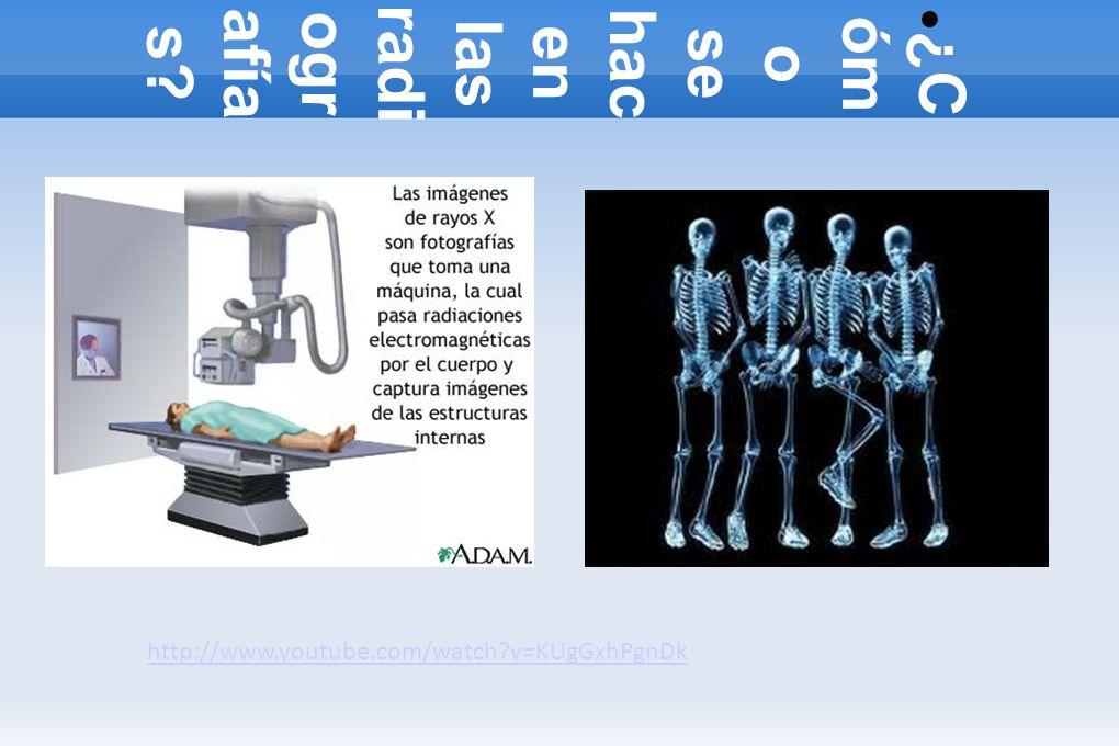 ¿Cómo se hacen las radiografías