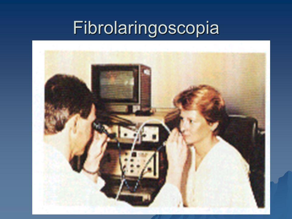Fibrolaringoscopia