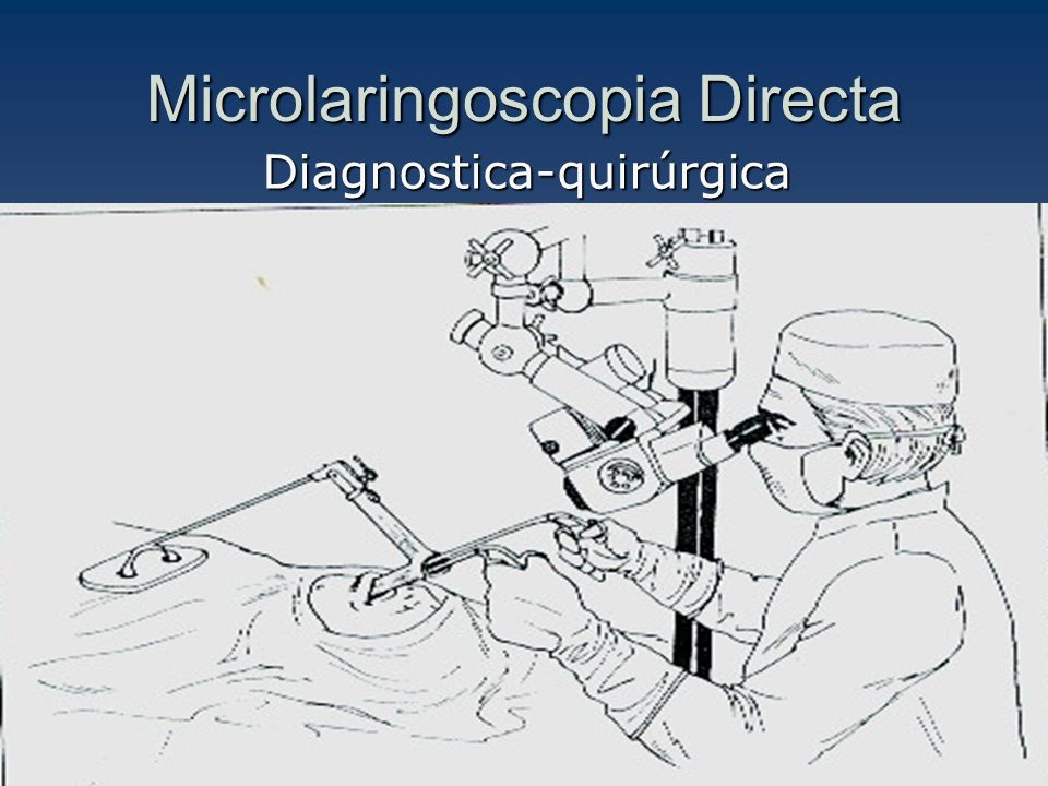 Microlaringoscopia Directa