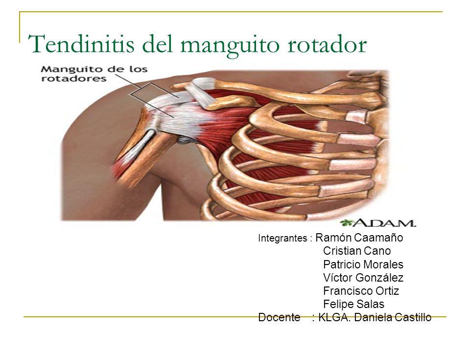 Tendinitis del manguito rotador