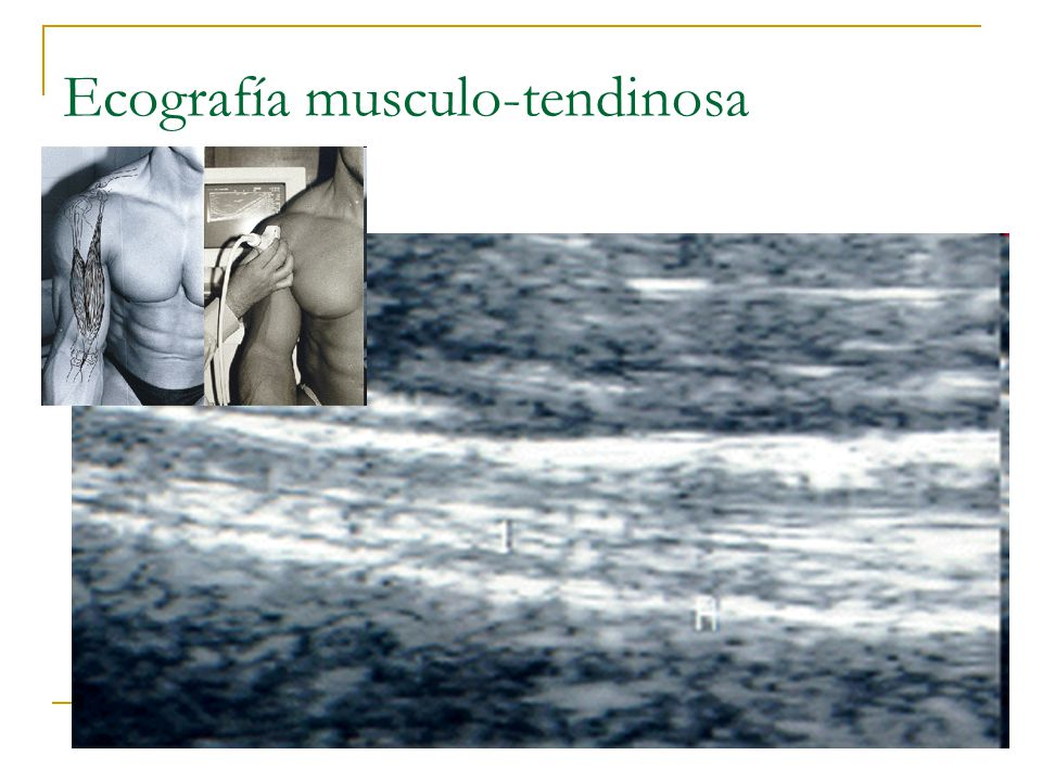 Ecografía musculo-tendinosa
