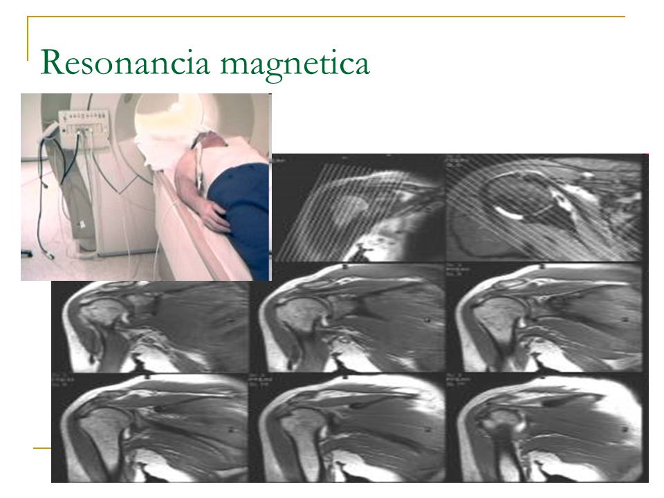 Resonancia magnetica 30