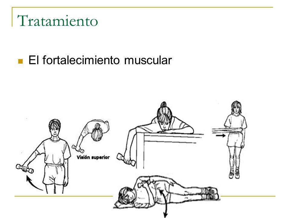 Tratamiento El fortalecimiento muscular