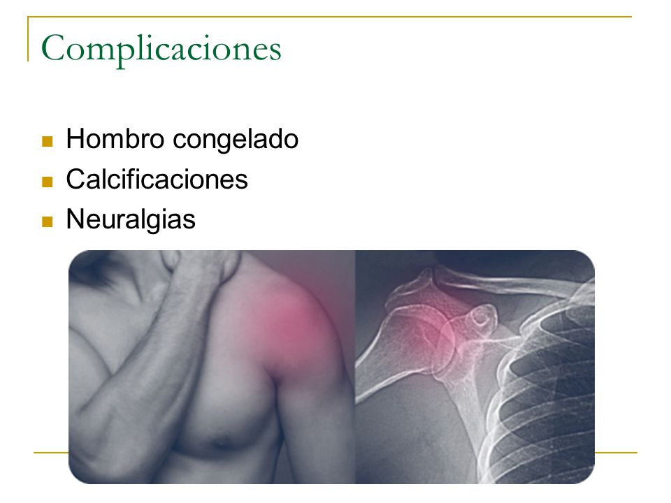 Complicaciones Hombro congelado Calcificaciones Neuralgias