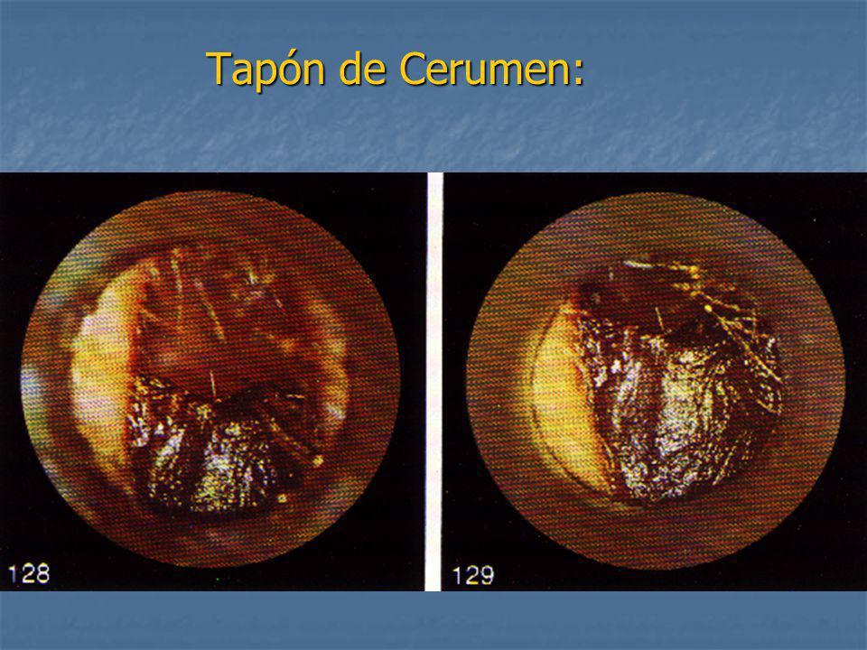 Tapón de Cerumen: