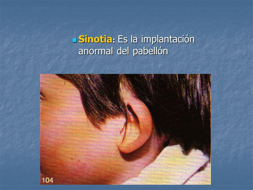 Sinotia: Es la implantación anormal del pabellón