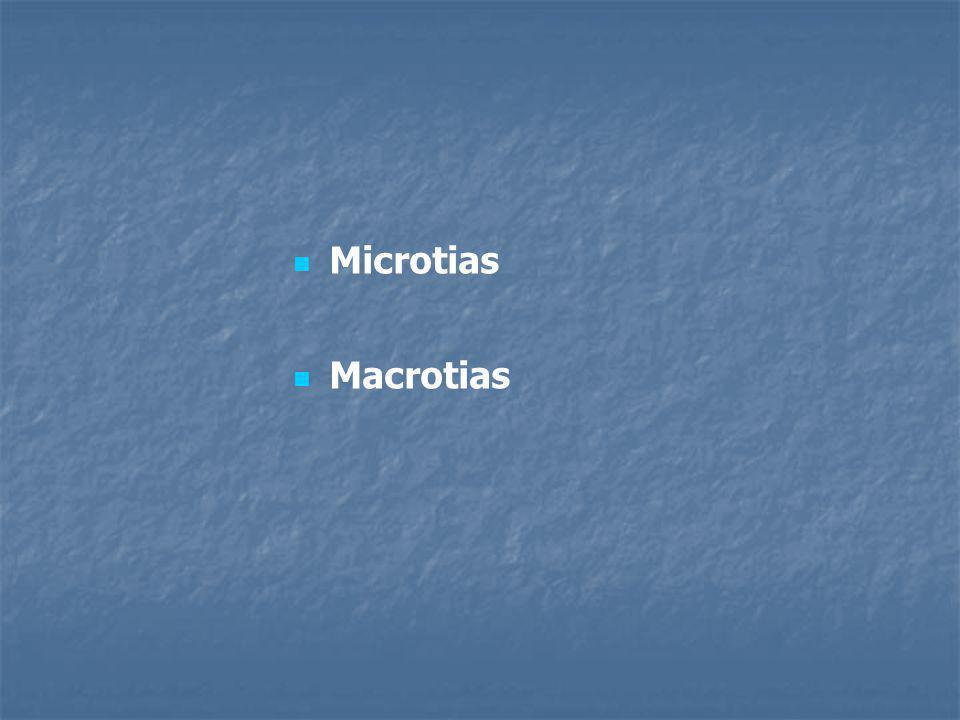Microtias Macrotias