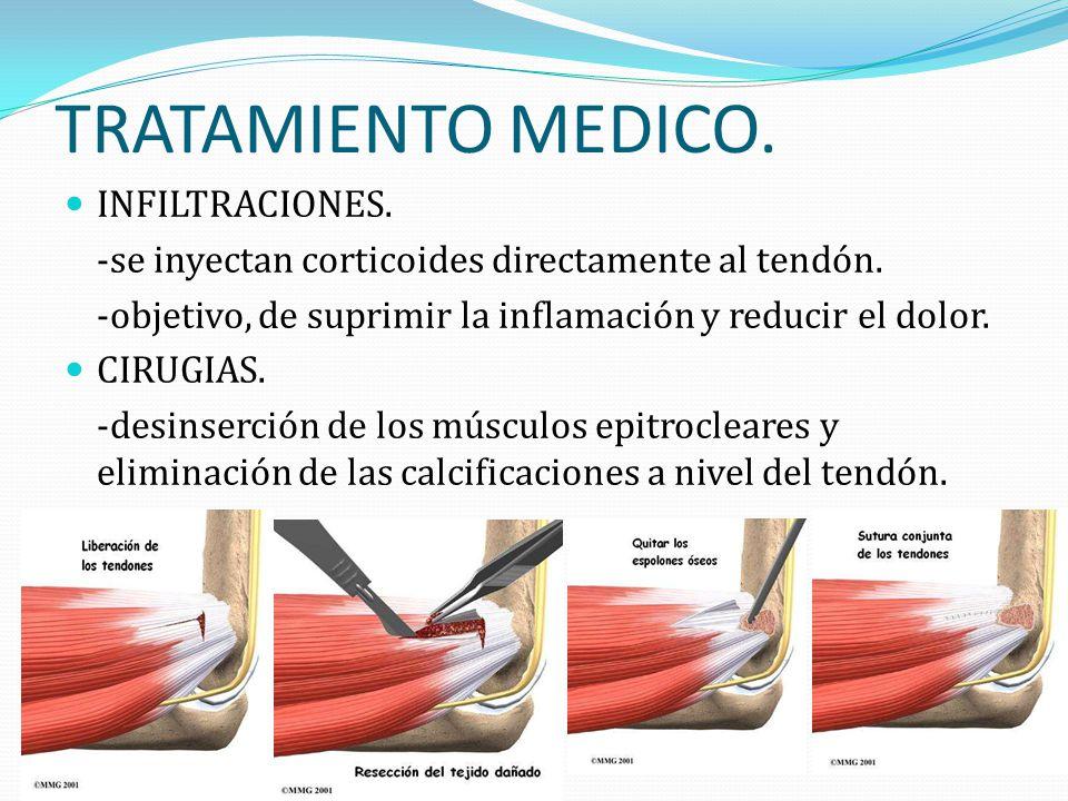 TRATAMIENTO MEDICO. INFILTRACIONES.