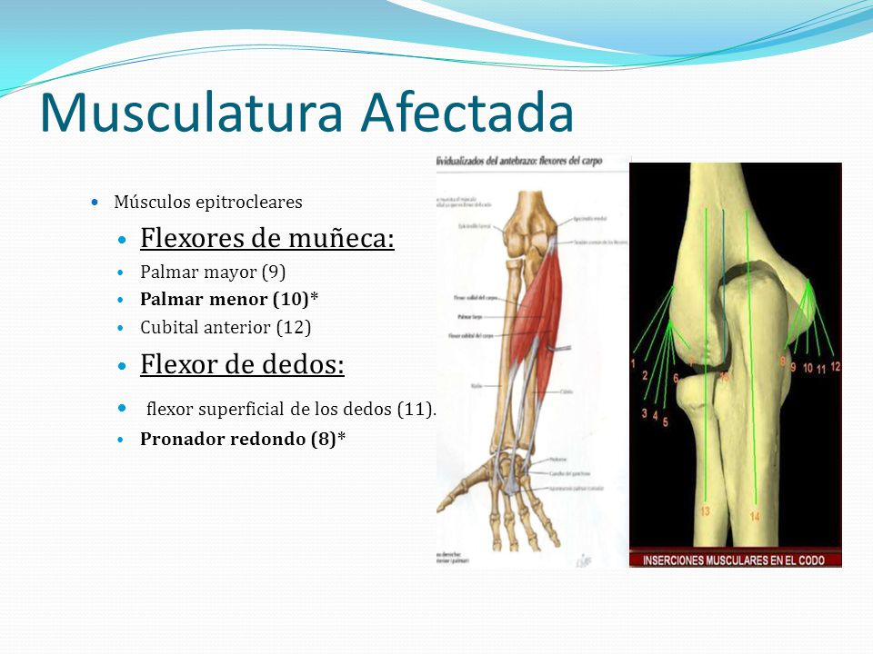 Musculatura Afectada Flexores de muñeca: Flexor de dedos: