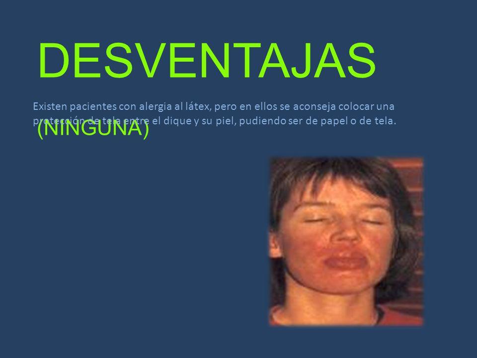 DESVENTAJAS (NINGUNA)