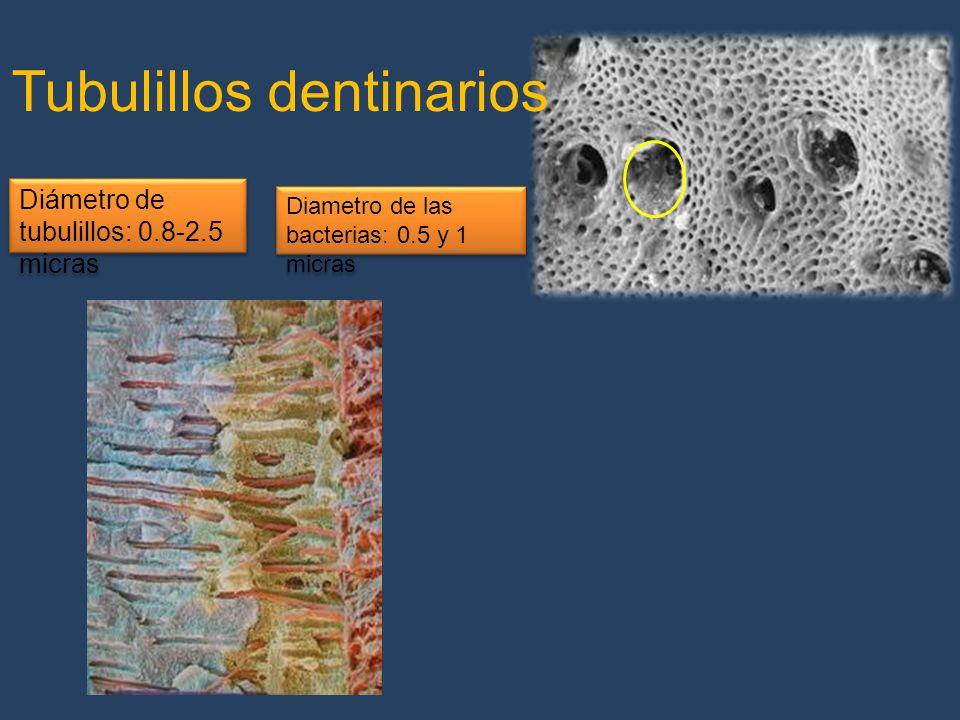 Tubulillos dentinarios