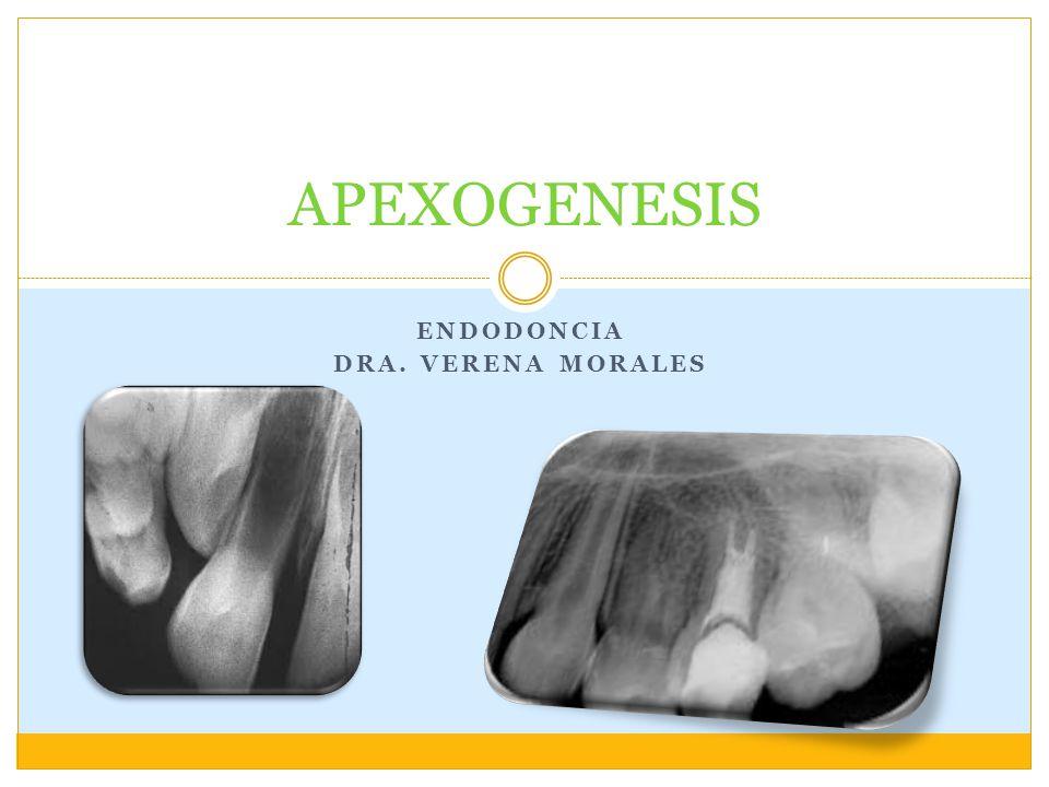 Endodoncia Dra. Verena morales