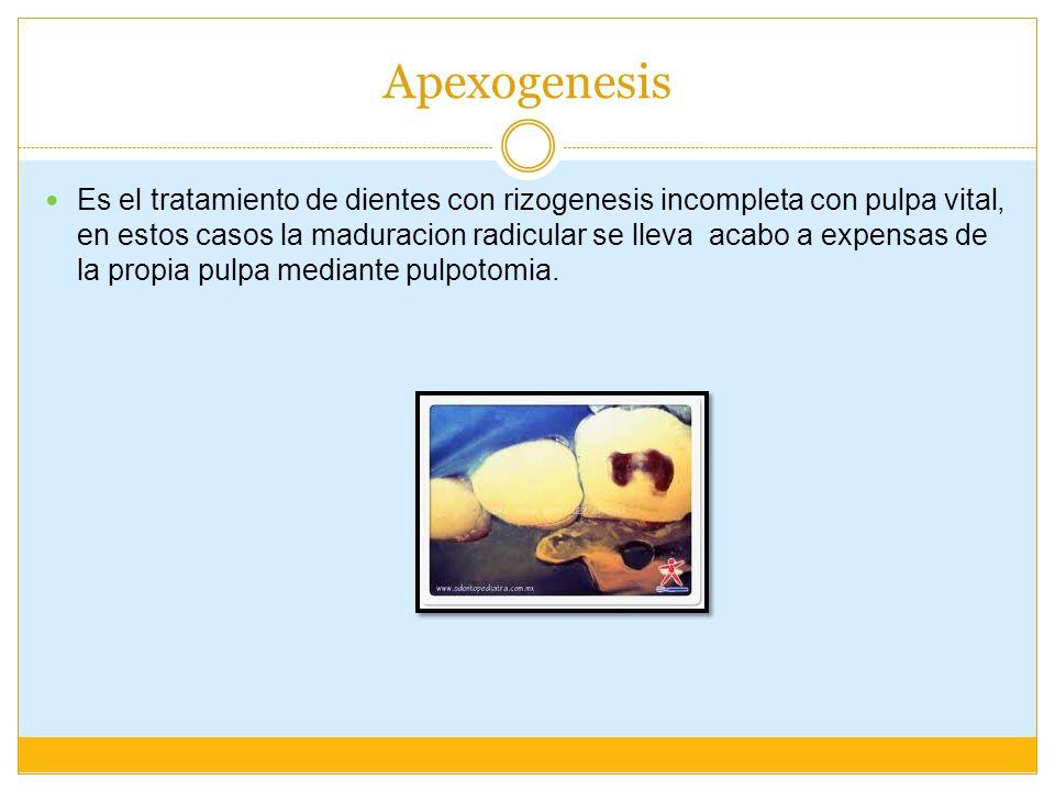 Apexogenesis