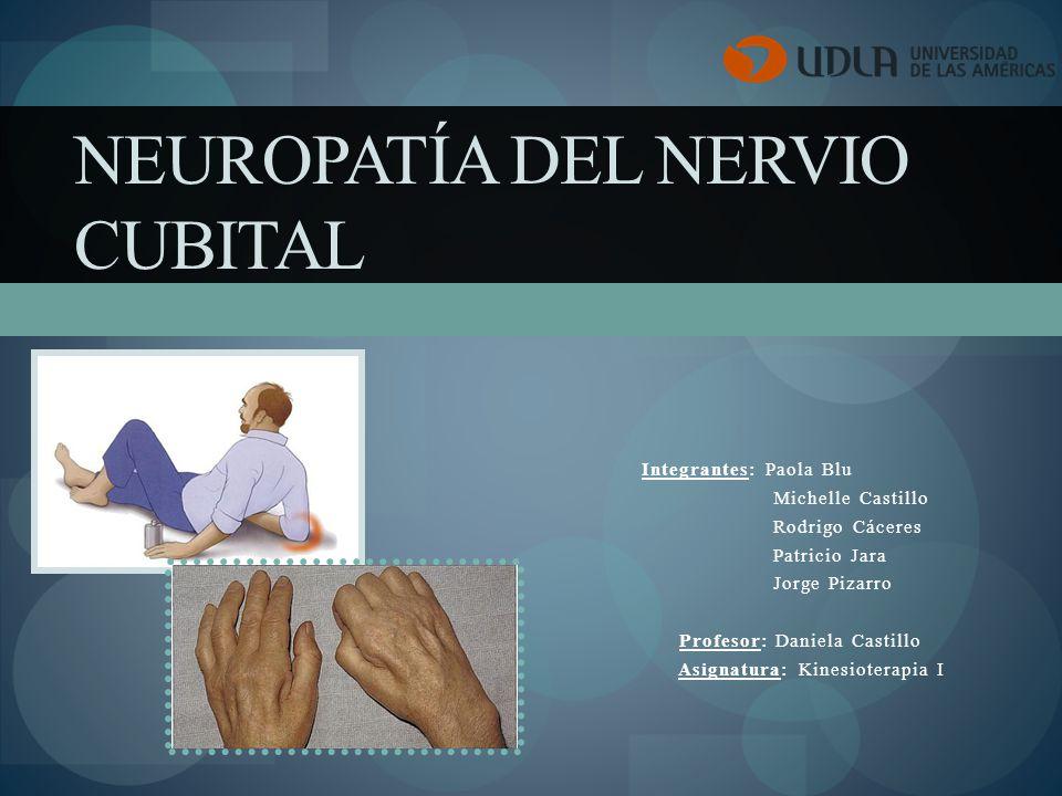 Neuropatía del Nervio Cubital