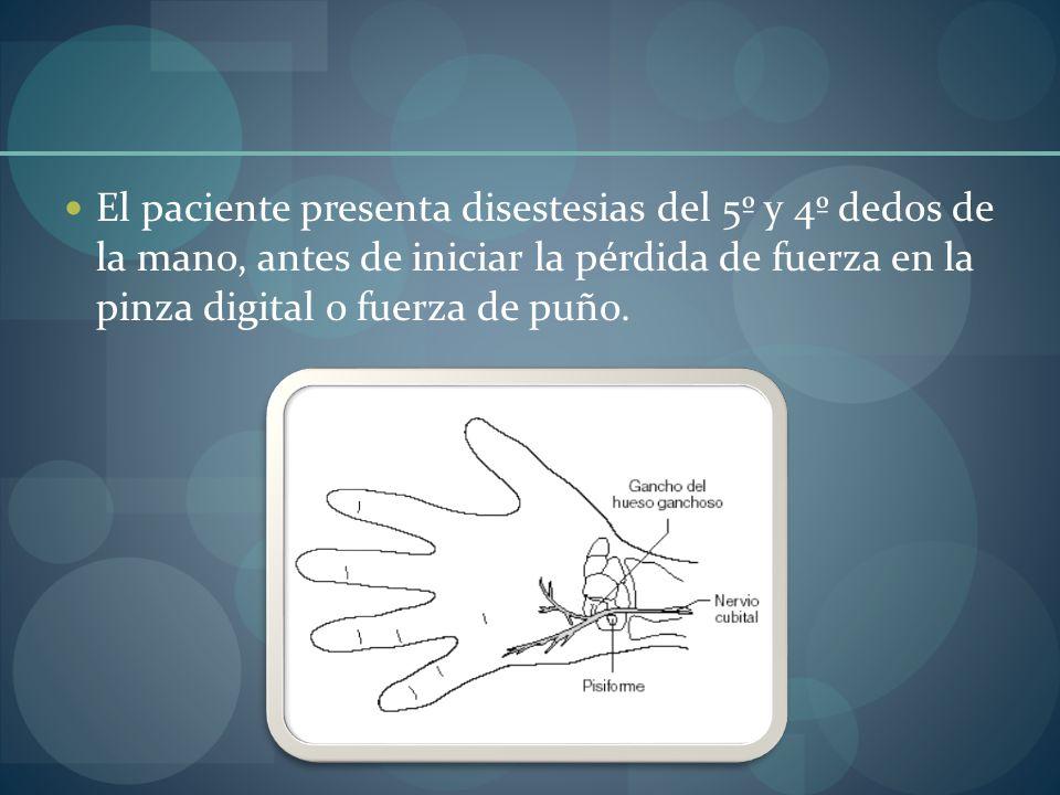 El paciente presenta disestesias del 5º y 4º dedos de la mano, antes de iniciar la pérdida de fuerza en la pinza digital o fuerza de puño.