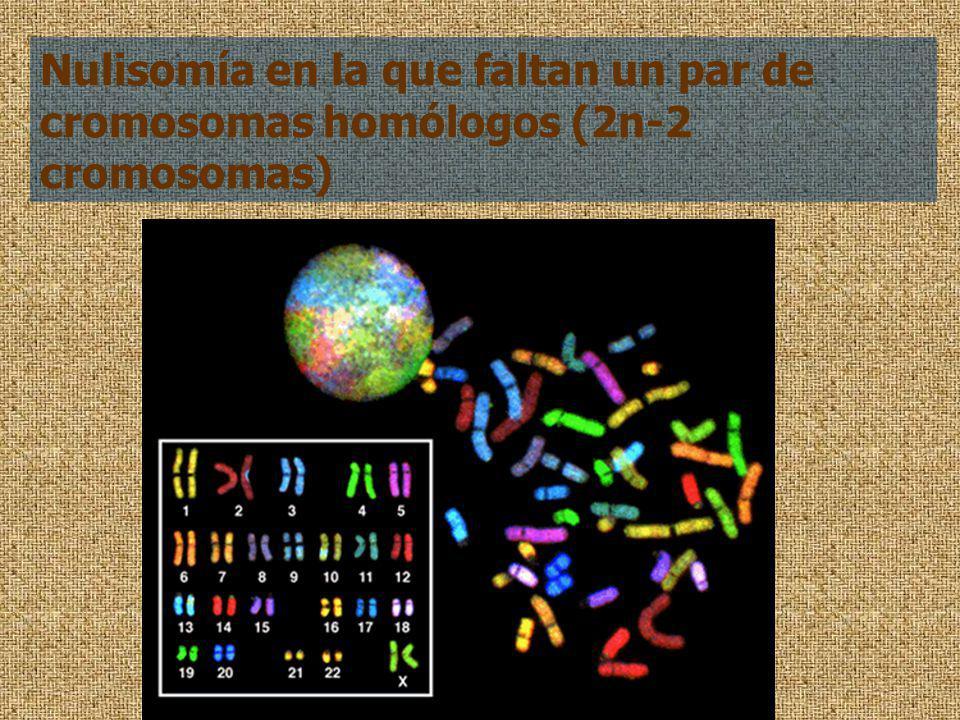Nulisomía en la que faltan un par de cromosomas homólogos (2n-2 cromosomas)