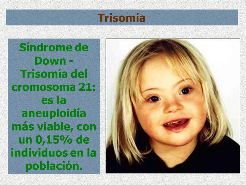Trisomía Síndrome de Down - Trisomía del cromosoma 21: es la aneuploidía más viable, con un 0,15% de individuos en la población.