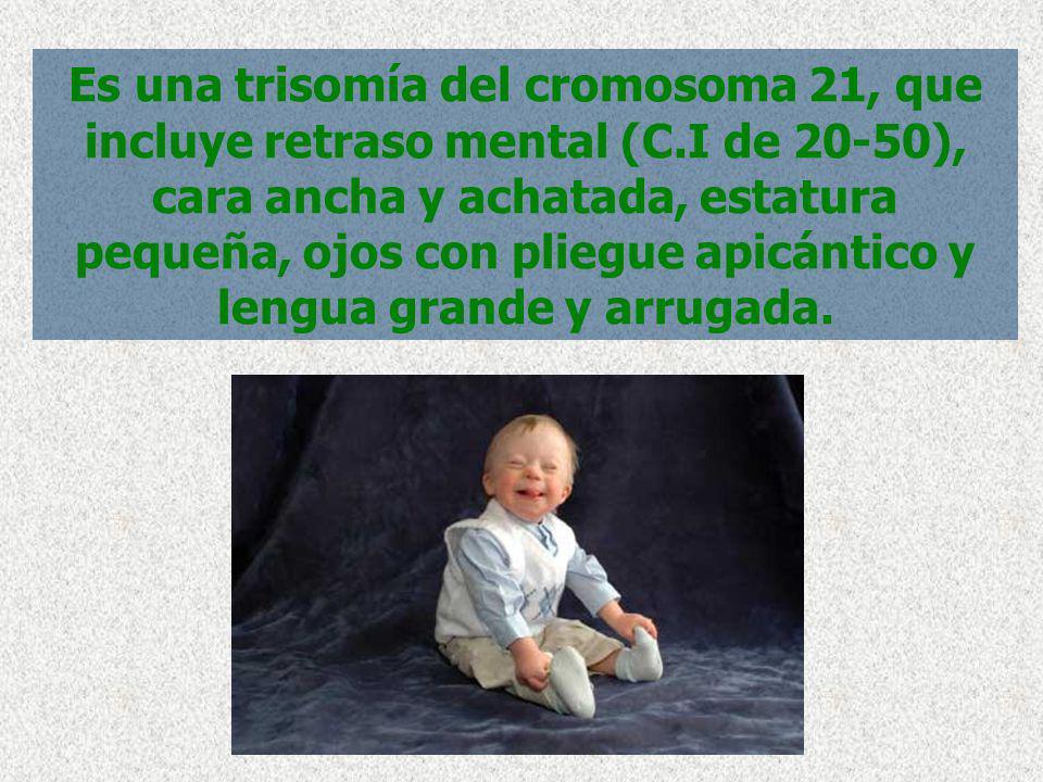 Es una trisomía del cromosoma 21, que incluye retraso mental (C