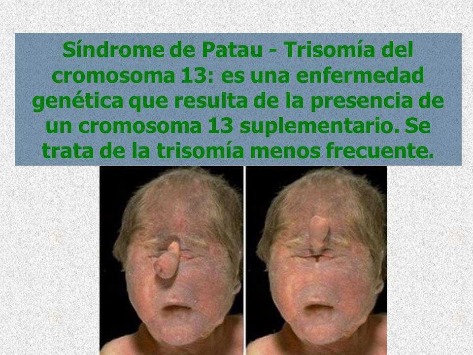 Síndrome de Patau - Trisomía del cromosoma 13: es una enfermedad genética que resulta de la presencia de un cromosoma 13 suplementario.