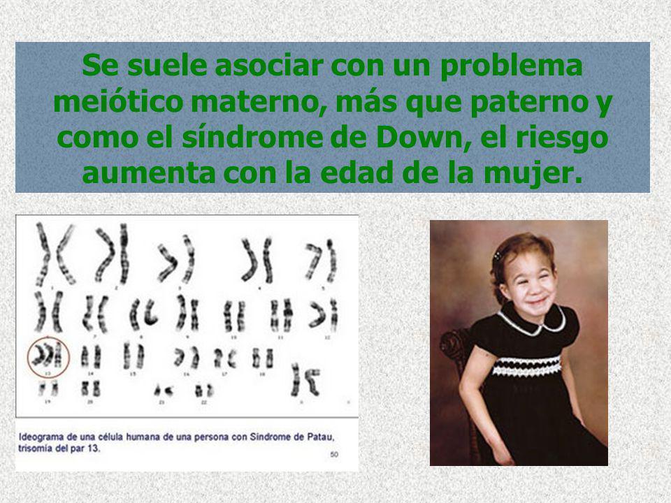 Se suele asociar con un problema meiótico materno, más que paterno y como el síndrome de Down, el riesgo aumenta con la edad de la mujer.