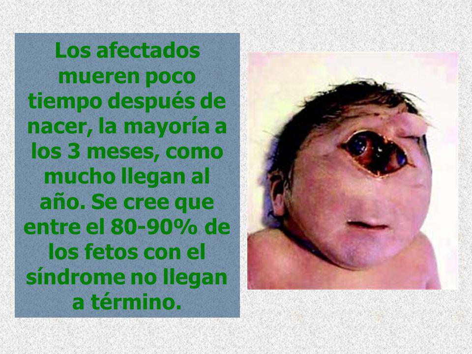 Los afectados mueren poco tiempo después de nacer, la mayoría a los 3 meses, como mucho llegan al año.