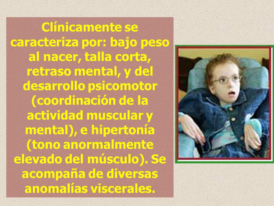 Clínicamente se caracteriza por: bajo peso al nacer, talla corta, retraso mental, y del desarrollo psicomotor (coordinación de la actividad muscular y mental), e hipertonía (tono anormalmente elevado del músculo).