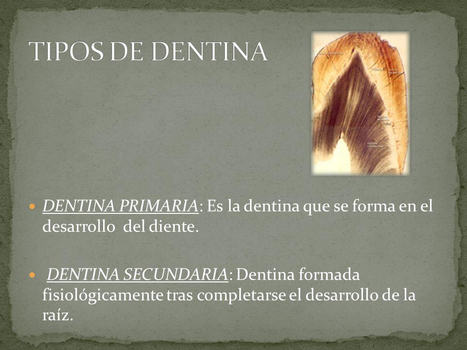 TIPOS DE DENTINA DENTINA PRIMARIA: Es la dentina que se forma en el desarrollo del diente.