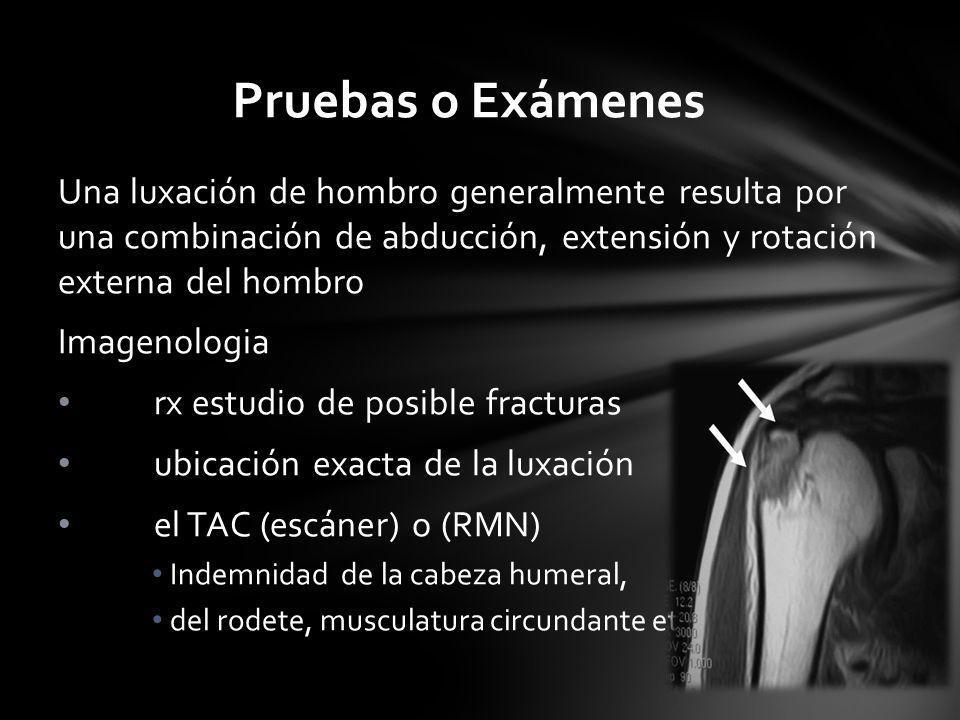 Pruebas o Exámenes Una luxación de hombro generalmente resulta por una combinación de abducción, extensión y rotación externa del hombro.