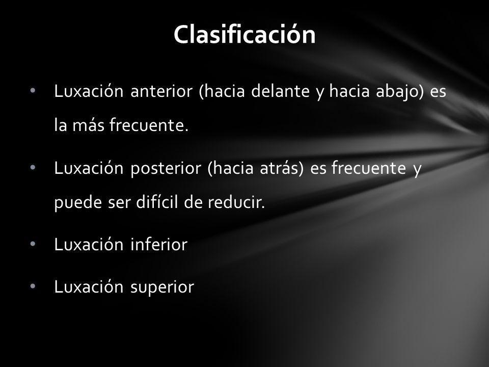 Clasificación Luxación anterior (hacia delante y hacia abajo) es la más frecuente.