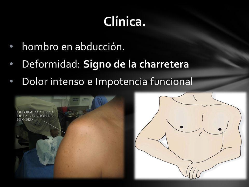 Clínica. hombro en abducción. Deformidad: Signo de la charretera