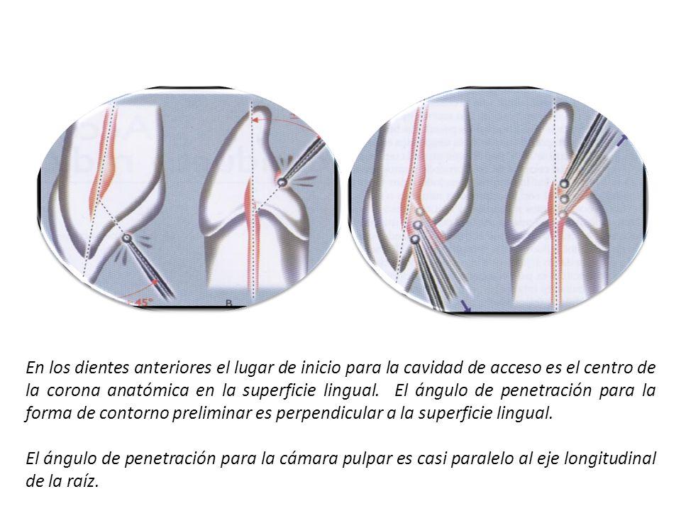 En los dientes anteriores el lugar de inicio para la cavidad de acceso es el centro de la corona anatómica en la superficie lingual. El ángulo de penetración para la forma de contorno preliminar es perpendicular a la superficie lingual.