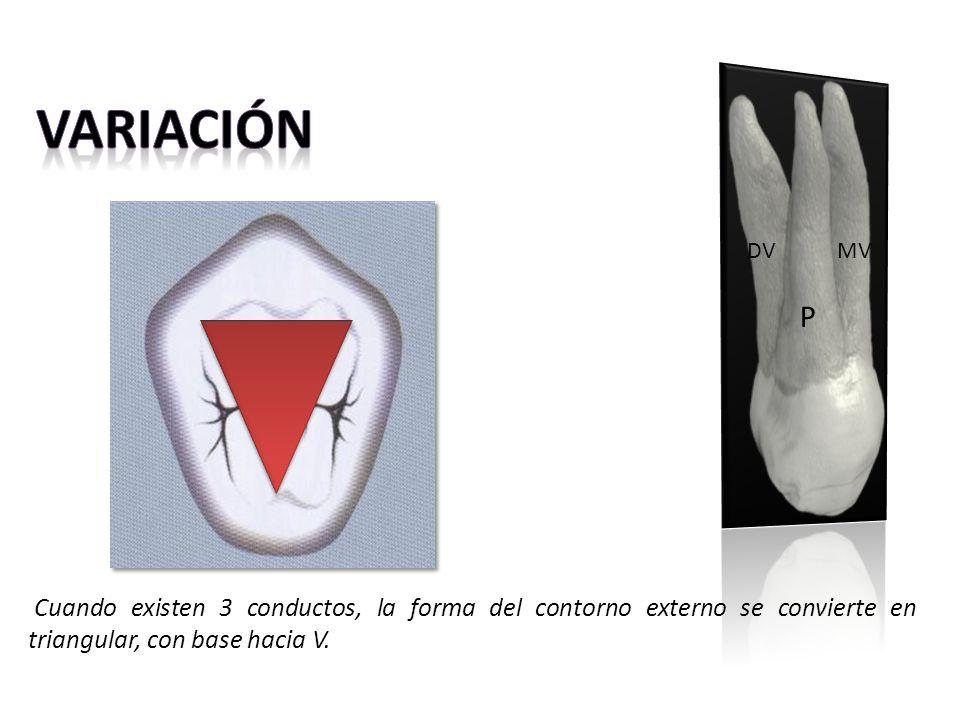 P MV. DV. Variación.
