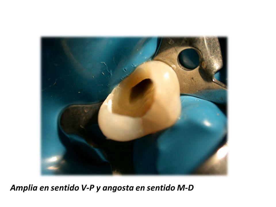 Amplia en sentido V-P y angosta en sentido M-D