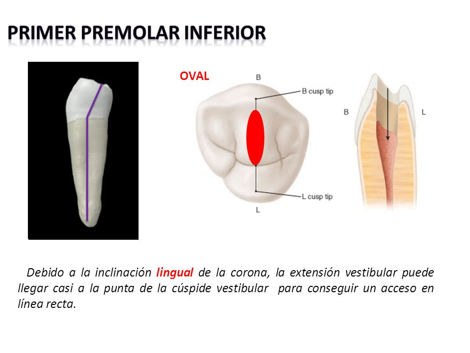 Primer premolar inferior