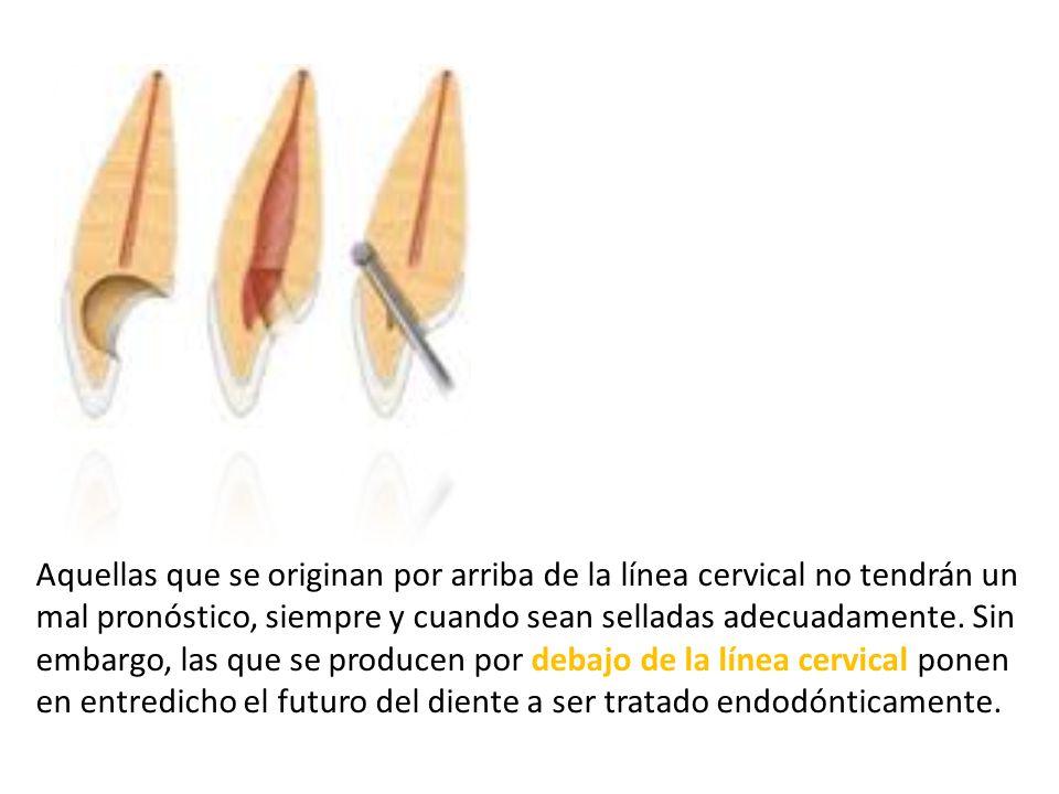 Aquellas que se originan por arriba de la línea cervical no tendrán un mal pronóstico, siempre y cuando sean selladas adecuadamente.