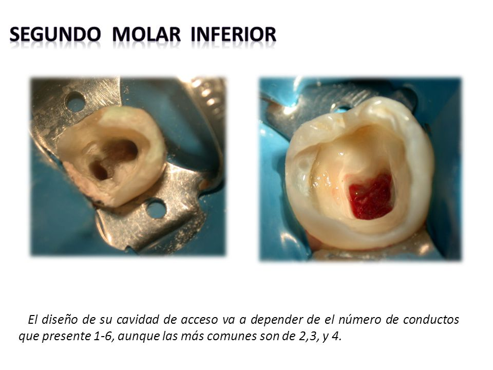 segundo molar inferior