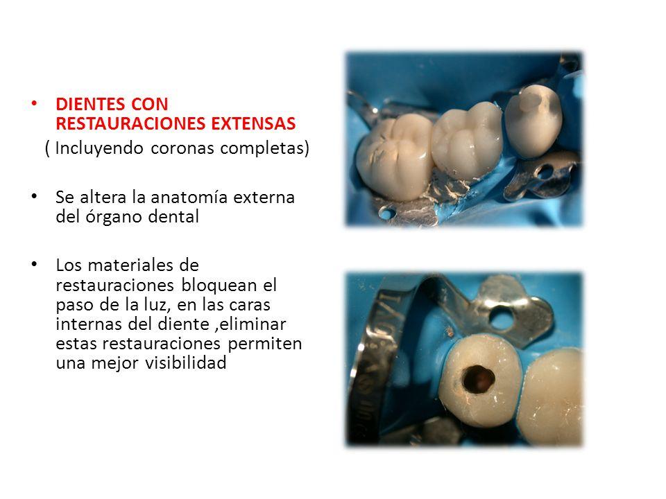 DIENTES CON RESTAURACIONES EXTENSAS