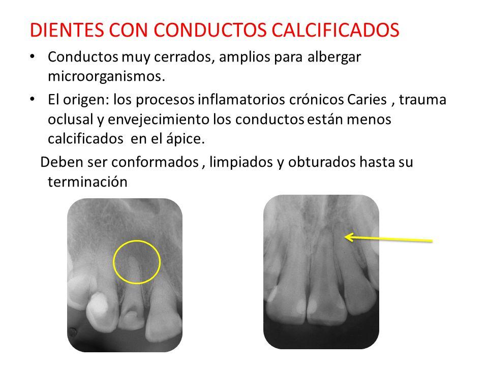 DIENTES CON CONDUCTOS CALCIFICADOS