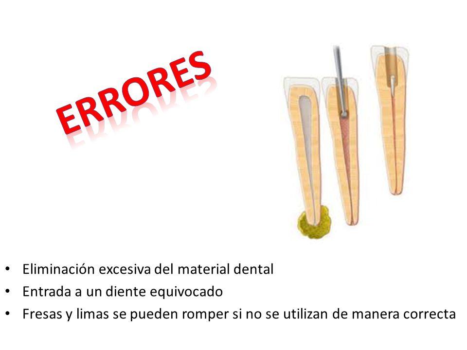 errores Eliminación excesiva del material dental